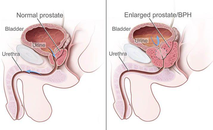 Ingaron a prosztatitisből